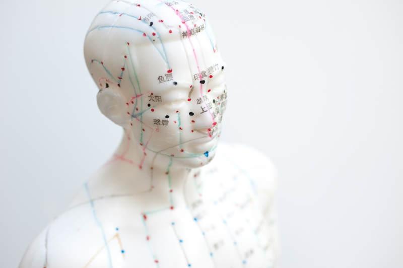 La acupuntura como opcion terapeutica Ipsimed